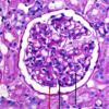 Endocapillary hypercellularity