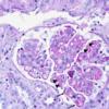 SLE nephritis